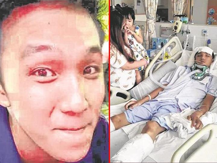 redwire-singaproe-malaysian-worker-hit-tree-branch-coma
